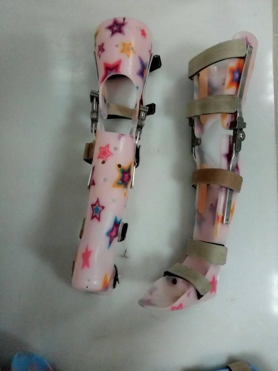 Замовити протези та ортези на нижні кінцівки